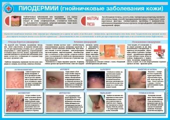 Санбюллетень Пиодермии (гнойничковые заболевания кожи)