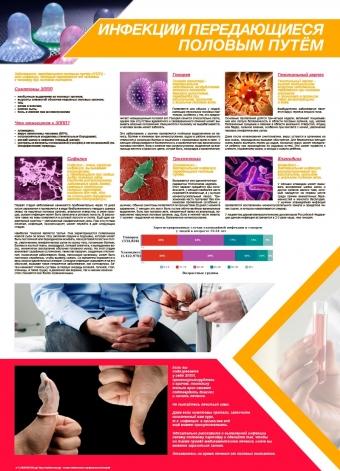 Санбюллетень Инфекции передающиеся половым путём