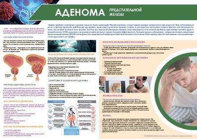 Санбюллетень Аденома предстательной железы