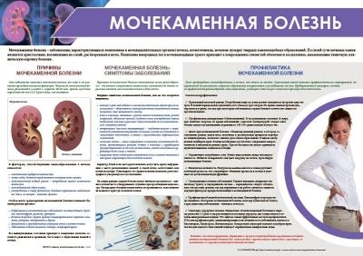 Санбюллетень Мочекаменная болезнь