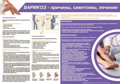 Санбюллетень ВАРИКОЗ - причины, симптомы, лечение